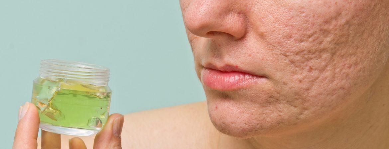 enlarged-pores