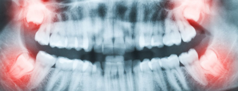 canine-teeth-by-dr-raymond-lim