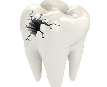 Dr Raymond Lim – Crack Tooth