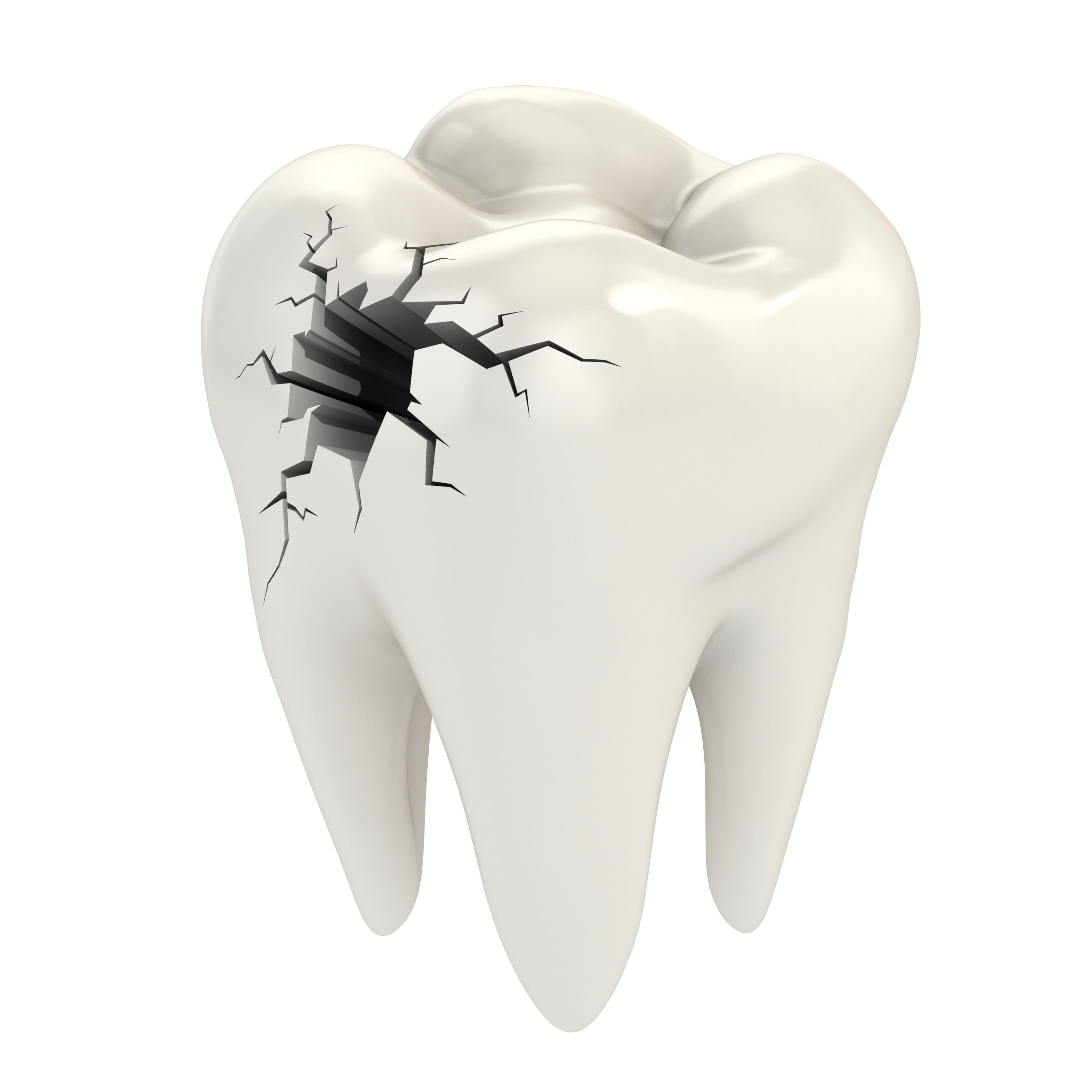 dr-raymond-lim-crack-tooth