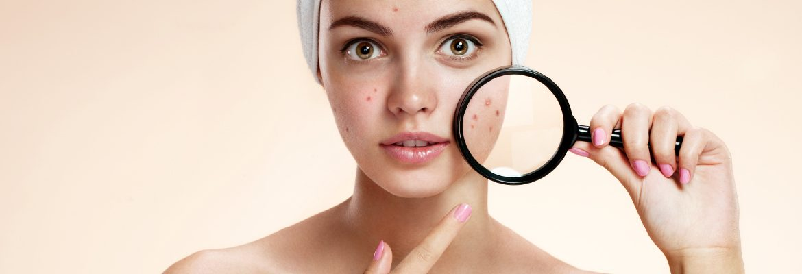 acne-by-dr-steven-ang