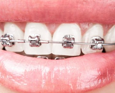 Braces By Dr Raymond Lim