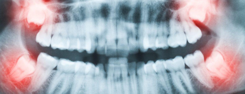 Canine Teeth by Dr Raymond Lim