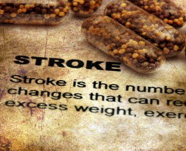 Stroke by Dr Benjamin Chua