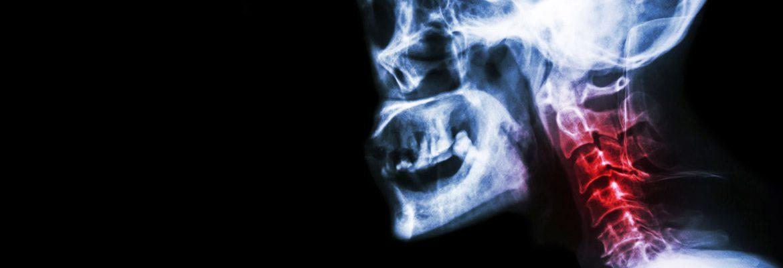 7-symptoms-that-signal-cervical-spondylosis