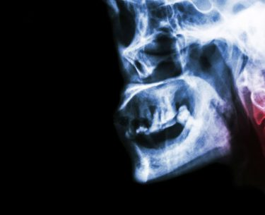7 Symptoms that Signal Cervical Spondylosis