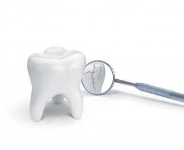 Dr Raymond Lim – Causes of Crack Tooth