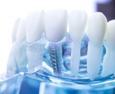 Dr Raymond Lim – Dentures vs Implant