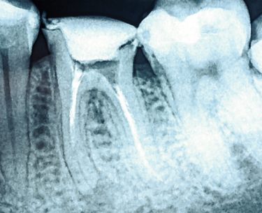 When Do You Need A Root Canal Treatment